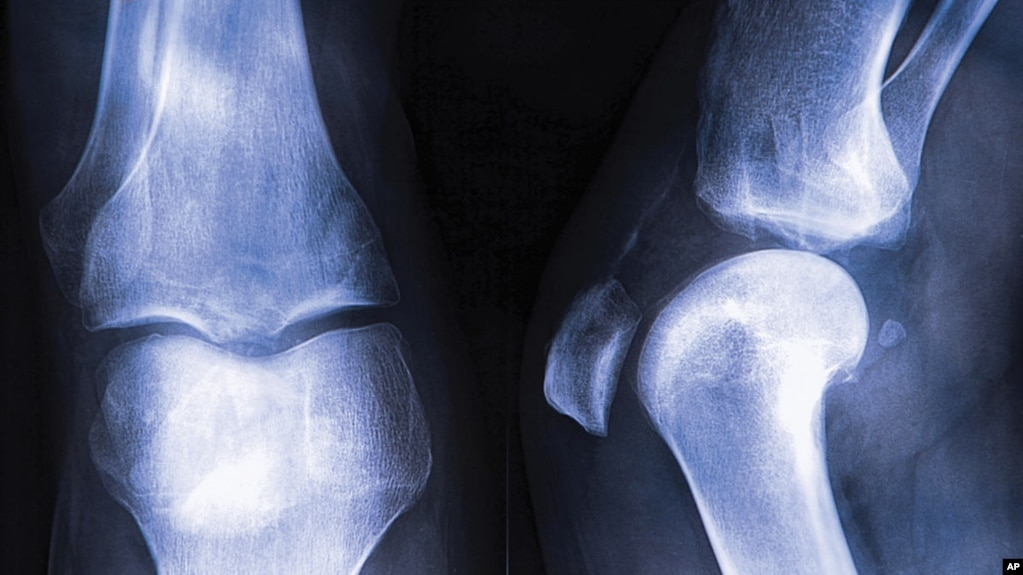Osteoporosis in leg join