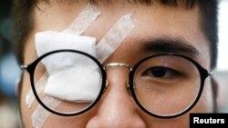 一名香港反送中抗议者带着眼罩,抗议警察8月12日在香港机场打伤一名示威者的眼睛。