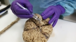 Quiz - Study Finds Some Brains Age Quicker Than Others