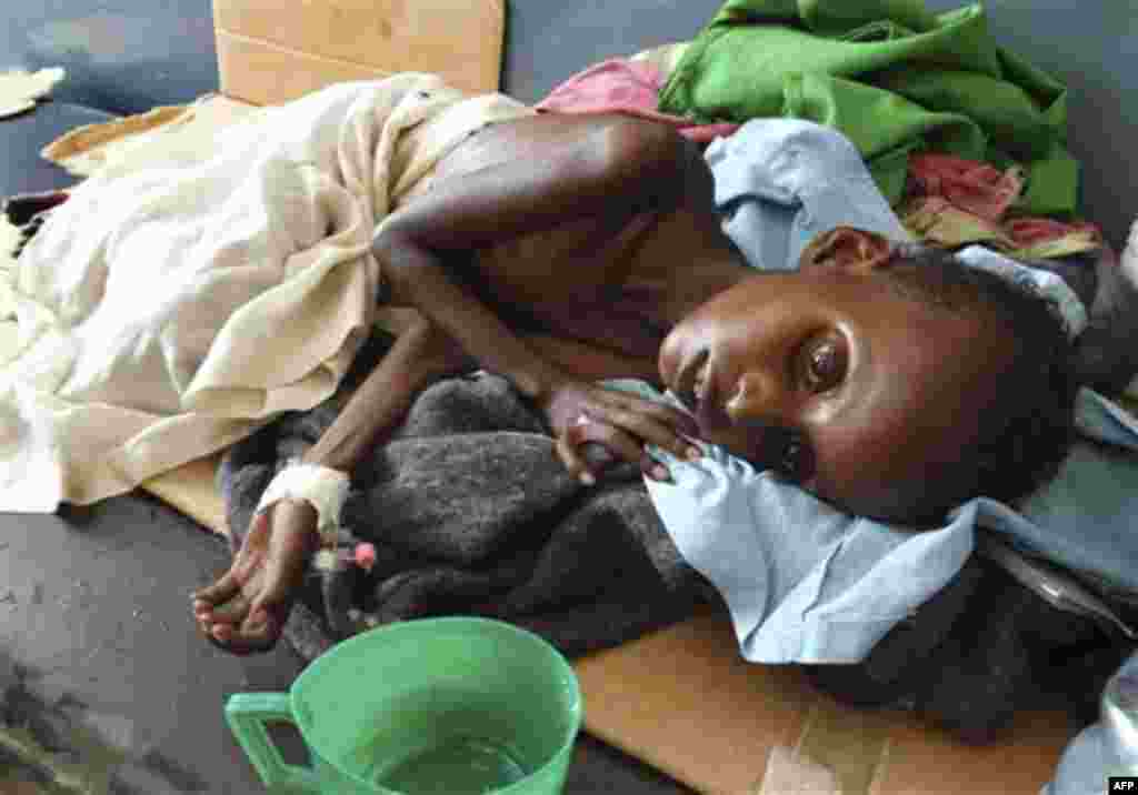 A malnourished child from southern Somalia lies in Banadir hospital in Mogadishu, Somalia, Monday, Aug 15, 2011. The World Food Program said Saturday that it is expanding its food distribution efforts in famine-struck Somalia, where the U.N. estimates th