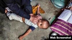 Yaki da cutar Polio