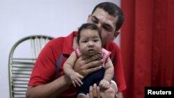 Glecion Fernando akimbeba mtoto wake wa miezi 2 Guilherme Soares Amorim, aliyezaliwa na ugonjwa wa microcephaly, huko Ipojuca, Brazil, Feb. 1, 2016.