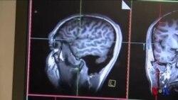 科学研究:男女大脑相似处多于预想