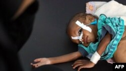 FILE - A malnourished child receives treatment at a malnutrition center in Yemen's third city of Taez, July 3, 2021.