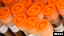 FILE - Test tubes filled with samples of bacteria to be tested are seen at the Health Protection Agency in north London.