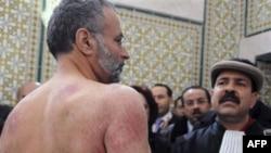 Luật sư Abdraouf Ayadi (trái) cho thấy các vết thương trên lưng mà ông nói là do bị cảnh sát đánh đập tại một cuộc họp báo ở Turis, ngày 29/12/2010. Ông Ayadi và Chokri Belaod (phải) đã bị bắt vì ủng hộ các cuộc biểu tình chống nạn thất nghiệp ở Tunisia