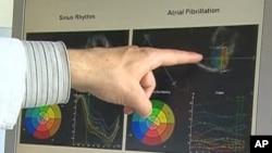 Atrijska fibrilacija - dijagnosticirana kod iznenađujuće puno žena