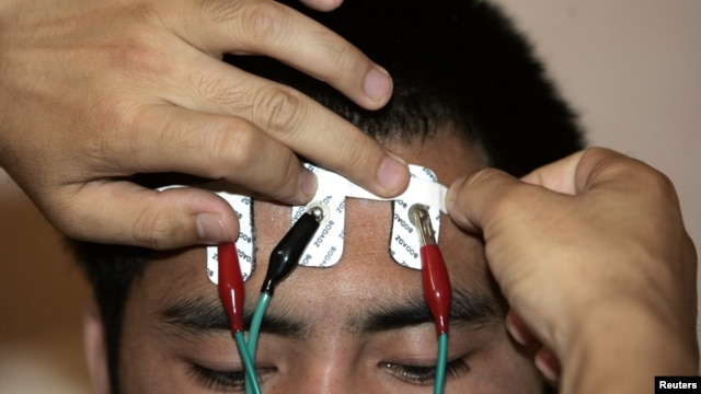 Electrodes are attached to the head of a drug addict to monitor his skin temperature and muscle electrical currents during psychological treatment at the Xin'an Labor Camp in Beijing, June 2007 file photo.