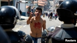 A boy with blood on his chest and hand gestures in front of police after 14-year-old student Kluiver Roa died during a protest in San Cristobal, Feb. 24, 2015.