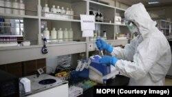 په افغانستان کې د کرونا ویروس د مثبتو پېښو شمېر ۴۳۴۶۸ ته پورته شو