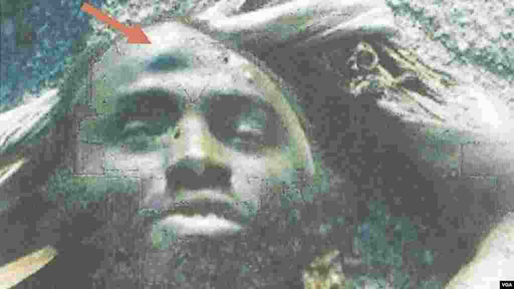 Detail of photo of the dead Mohammed Bashir showing a unique facial mark indicating the identity of the body as the same person appearing in several Boko Haram videos.