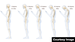 This chart shows the stress put on the neck and spine as a result of hunching over a smartphone. (Courtesy Dr. Ken Hansraj M.D.)