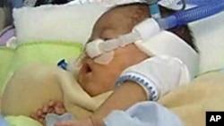 早产婴儿数上升