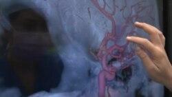 神经外科医生将虚拟现实用于脑部手术