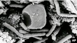 活性炭疽杆菌孢子(資料圖片)