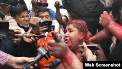 La alcaldesa de Vinto, en Cochambamba, Bolivia, María P. Arce Guzán (en la foto) y los Defensores del Pueblo fueron Nadia Cruz Tarifa y Nelson Cox Mayorga recibieron medidas de protección de la CIDH.