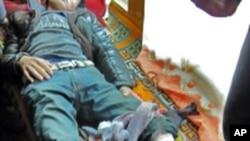 春节期间被中国军警打伤的四川阿坝炉霍的藏人抗议者
