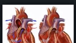 Imazhet 3-D ndihmojnë kardiologët