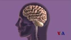 改善生活方式或将有助于认知衰退得以逆转