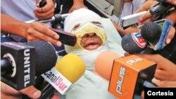 Foto tomada del diario El Día, cuando el periodista boliviano era trasladado a un hospital.