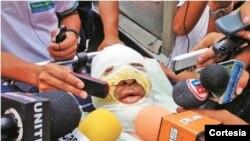 Foto tomada del diario El Día, cuando el periodista era trasladado a un hospital.
