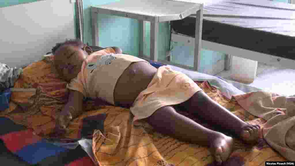 Cette petite fille souffre de malnutrition et présente de nombreux œdèmes au centre régional de santé mère enfant de Diffa, Niger, le 18 avril 2017 (VOA/Nicolas Pinault)