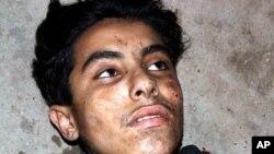یک حمله کننده ی خوردسال که قبل از انفجار به دست پولیس دستگیر شد.