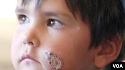 Salah seorang anak penderita leishmaniasis (foto: dok). Tim peneliti AS berhasil melakukan pemblokiran sel dengan parasit yang menyebabkan leishmaniasis, penyakit tropis yang disebabkan parasit yang ditularkan melalui gigitan lalat pasir.