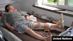 유엔은 최근 북한 수해 지역 답사 결과, 기초 의약품이 매우 부족한 상황이라고 밝혔다.