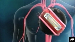 The device is a tiny sensor, implanted through a catheter in the heart's pulmonary artery. The procedure takes just seven minutes. The patient passes a wand over his chest, collecting data on heart pressure. That data is sent electronically to the doctor'