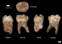 These molars were found in Qesem Cave.