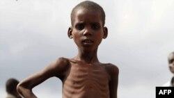 Một bé trai Somalia bị suy dinh dưỡng đứng gần một trạm phân phối thực phẩm trong huyện Hodan ở phía nam của thủ đô Mogadishu