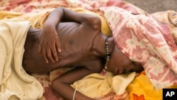 FILE - A severely malnourished child lies on а bed at MSF hospital Bentiu, South Sudan, July 3, 2014.