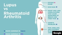 Lupus Symptoms You Can't Afford to Ignore (Photo credit: CreakyJoints (https://creakyjoints.org/symptoms/lupus-vs-rheumatoid-arthritis/)
