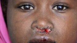 Cô bé Muneera, 7 tuổi, mắc bệnh kala azar, một trong số các căn bệnh NTD.