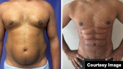 At left is a frontal view of a male patient's stomach prior to surgery. At right is the frontal view one year after abdominal etching surgery.