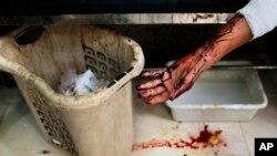 一名被叙利亚政府军炮弹击中的男子躺在阿勒颇一家医院的病床上。(资料照)