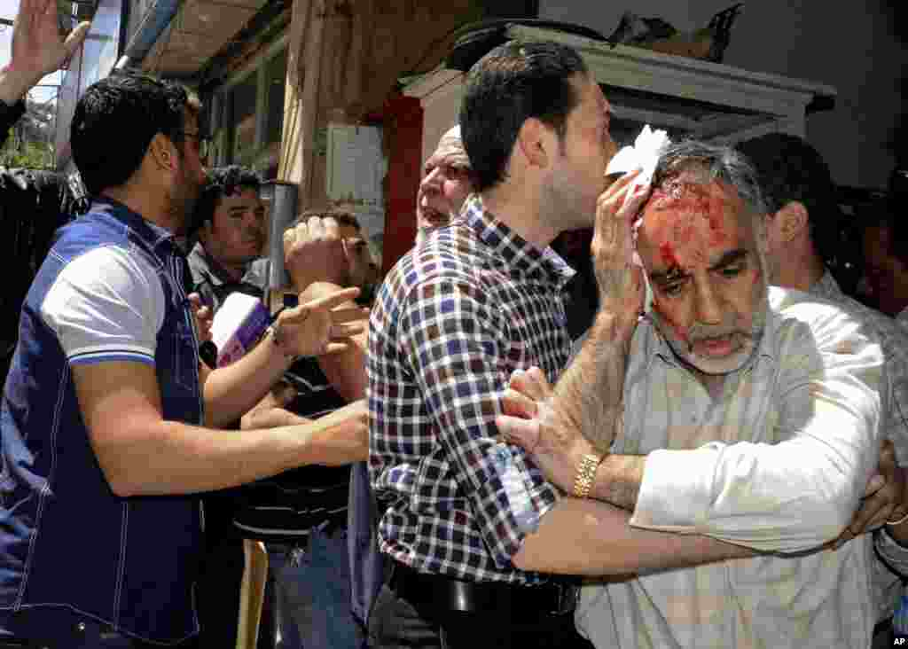 A Syrian man who was injured in a powerful explosion leaves a damaged building in the central district of Marjeh, in Damascus, Syria, April 30, 2013.