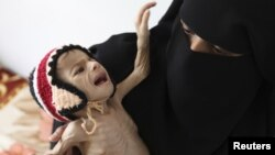 A woman holds her malnourished child at a feeding center at al-Sabyeen hospital in Yemen's capital, Sanaa, June 20, 2012.