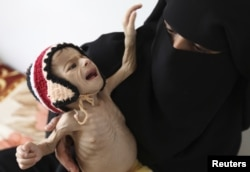 FILE - A woman holds her malnourished child at a feeding center at al-Sabyeen hospital in Yemen's capital, Sanaa.