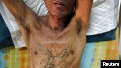 Salah satu orang dengan AIDS di Thailand.