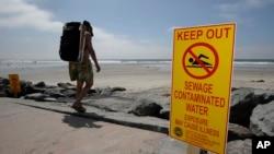 Znak koji upozorava posetioce na zagađenu vodu na jednoj plaži u San Dijegu