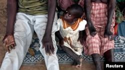 Uma criança entre pais afectados pela lepra
