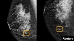Hình vuông màu vàng cho thấy nơi hệ thống trí tuệ nhân tạo (AI) phát hiện ung thư nằm lẫn trong tế bào vú (ảnh do trường đại học Tây Bắc Chicago công bố ngày 1/1/ 2020)
