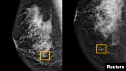 A yellow box indicates where an artificial intelligence (AI) system found cancer hiding inside breast tissue, in an undated photo released by Northwestern University in Chicago, Jan. 1, 2020.