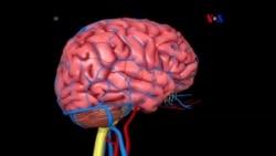 Holograma cerebral 3D