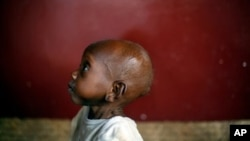 Waka, aged 2, a severely malnourished child sits on the floor at Bangui's pediatric center in Bangui, Central African Republic, Tuesday, Dec. 17, 2013. According to UNICEF's doctor Celestin Traore, even though malnutrition is high in the country, the prob