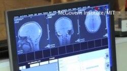 Escaneo cerebral para depresión