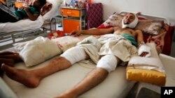 ملگري ملتونه: د یمن په هرو پنځو وگړو کې څلور تنه بشري مرستو ته اړتیا لري