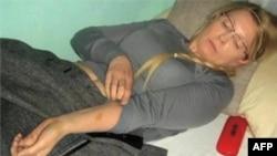 Julija Timošenko u zatvoru pokazuje modrice pošto su je, kako tvrdi, tukli stražari (arhiva)